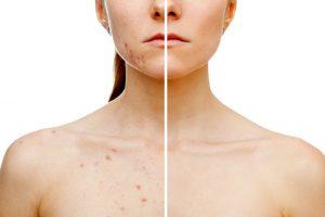 blefaroplastia sin cirugia sistema plexr cadiz-medicina-estetica-2-tratamientos-faciales-mejores-clinicas-de-estetica-jerez-tratamientos-corporales