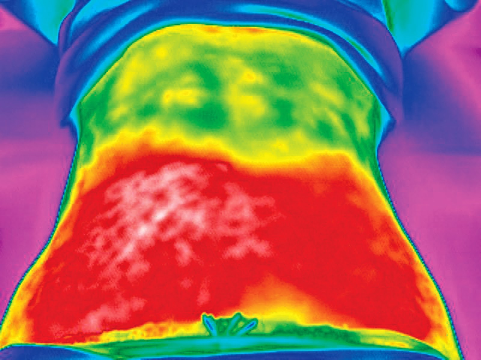 Como perder peso y eliminar la grasa Tratamiento Vanquish - adelgazar jerez - perder peso cadiz - eliminar grasa jerez - dra maria jose sierra gudin (1)