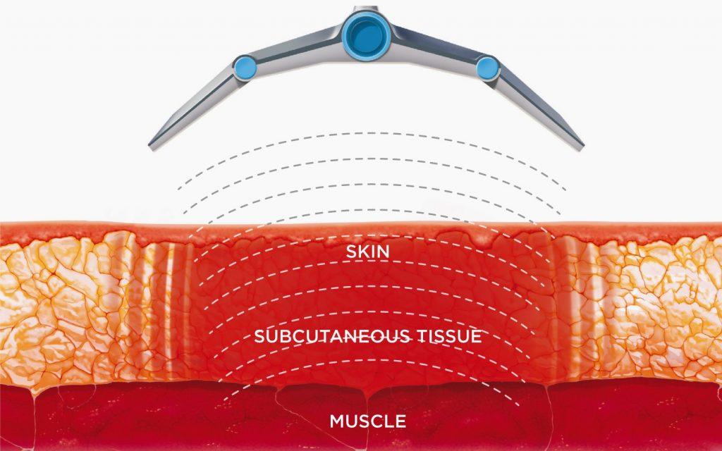 Como perder peso y eliminar la grasa Tratamiento Vanquish - adelgazar jerez - perder peso cadiz - eliminar grasa jerez - dra maria jose sierra gudin (2)
